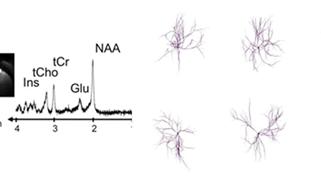 Caractériser la morphologie des neurones et des astrocytes in vivo par spectroscopie par résonance magnétique