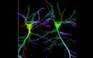 Nouvelle méthode de marquage de protéines pour la microscopie super-résolution