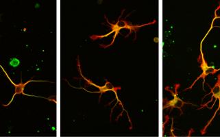 Une enzyme cruciale pour les neurones enfin démasquée!