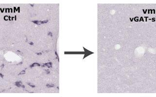 Identification des neurones générant la paralysie corporelle pendant le sommeil paradoxal: une cible précoce dans la maladie de Parkinson?