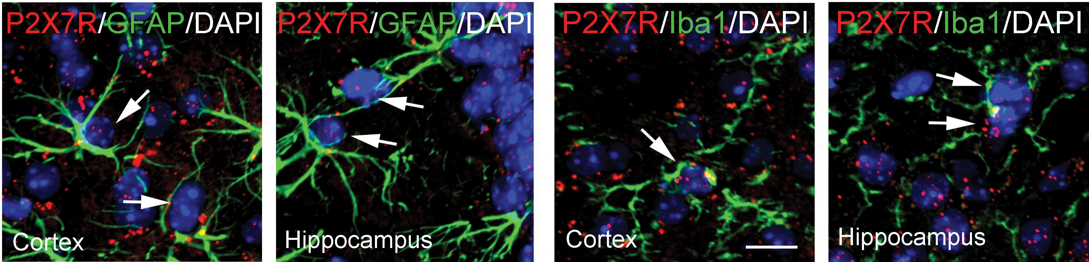 Un nouveau mécanisme immunitaire mis en évidence dans la maladie d'Alzheimer