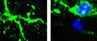 TLR9 et GR dans la microglie : une nouvelle signalisation inflammatoire dans la maladie de Parkinson!
