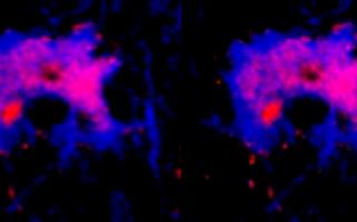 Un rôle anti-inflammatoire pour la molécule APRIL dans les lésions de sclérose en plaques
