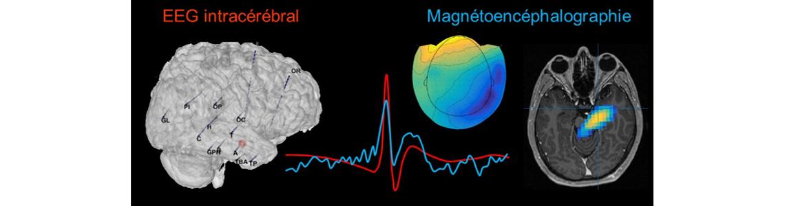 La preuve est faite : Les champs magnétiques des structures profondes du cerveau sont visibles depuis la surface !