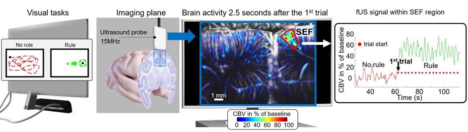 Activité cérébrale lors de tâches complexes révélée par la neuroimagerie ultrasonore ultrarapide