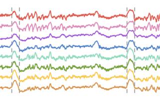 L'isolation des calculs corticaux pendant les ondes delta permet la consolidation de la mémoire