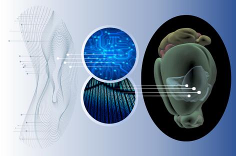 Maladie de Huntington: l'alliance de la génomique et de l'intelligence artificielle met en avant un rôle central des pertes de résilience neuronale et une feuille de route pour les empêcher