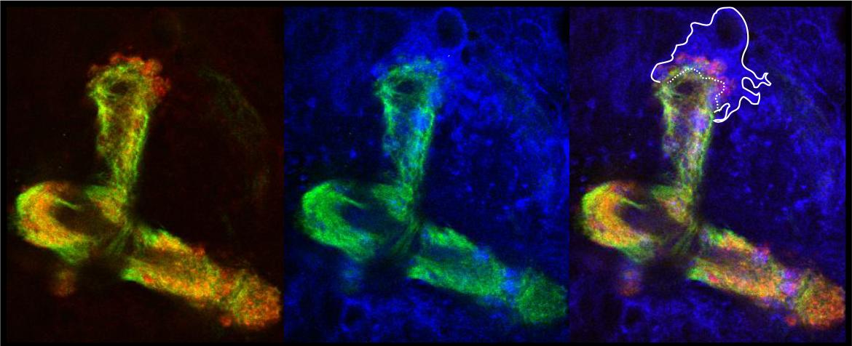 Place aux jeunes axones ; Orion appelle les cellules gliales.